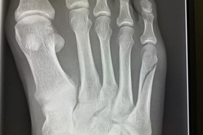 骨折2週間後のレントゲン写真