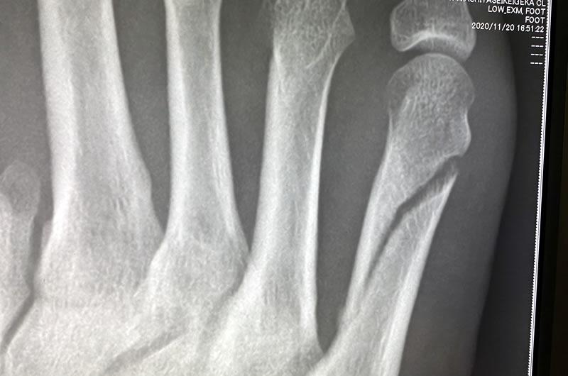 骨折45日後の状況報告