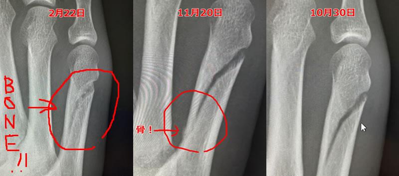 10月から2月までの骨の修復過程