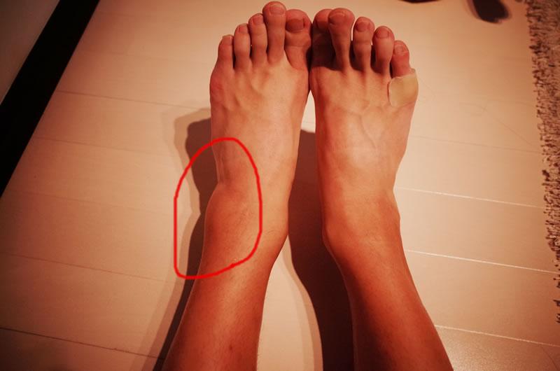 足がまた腫れた・・・